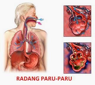 obat alami untuk radang paru-paru