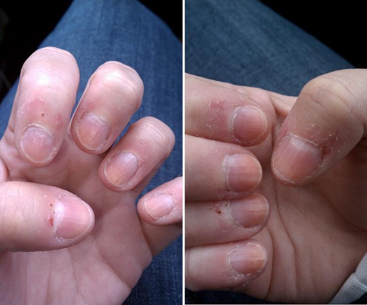 nail art airbrush system opi nail polish home remedy for nail fungus