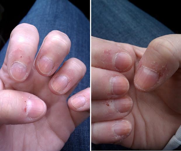nibble files nail biter's