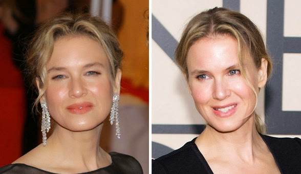 Renee Zellweger Before And After Eyes Foodtrainers: Yes, I n...