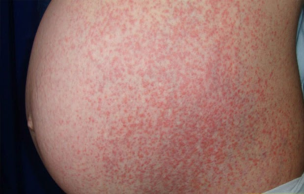 Pruritic Urticarial Papules and Plaques of Pregnancy (PUPPPs) dalam Kehamilan