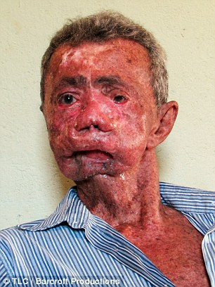 http://3.bp.blogspot.com/-aeA0FZUZfUo/VdNZVeAYkOI/AAAAAAAAyq4/-rdDarbG_E4/s1600/enfermedad-3.jpg