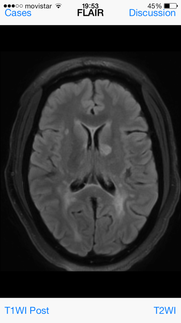 Neuroradiology Cases 3