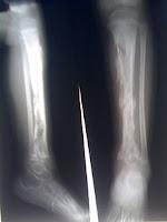 Nursing Diagnosis for Osteomyelitis