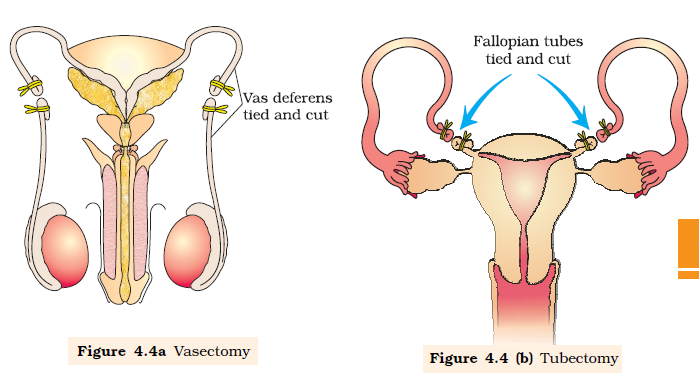 intentional termination of pregnancy Abortion - thetermination of an unwanted pregnancy definition an abortion signifies the termination of a pregnancy.