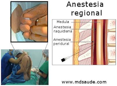 Anestesia regional - peridural e raquianestesia