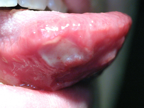 Similar Galleries  Canker Sores Under Tongue   Herpes Under Tongue  Cold Sore Under Tongue Treatment