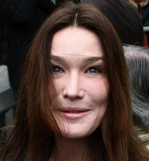Carla Bruni, ofiara botoksu. Carla Bruni, botox victim.