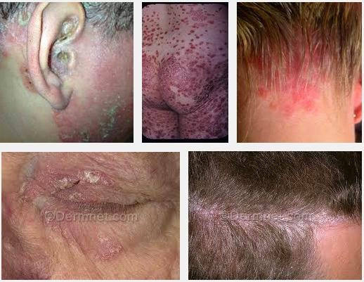 One of the major complications of erythrodermic psoriasis is dehydration (fluid loss) and protein loss 1