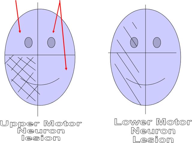 Medicodental facial nerve lesion for Lower motor neuron diseases