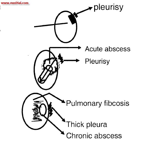 pathology of lung abscess