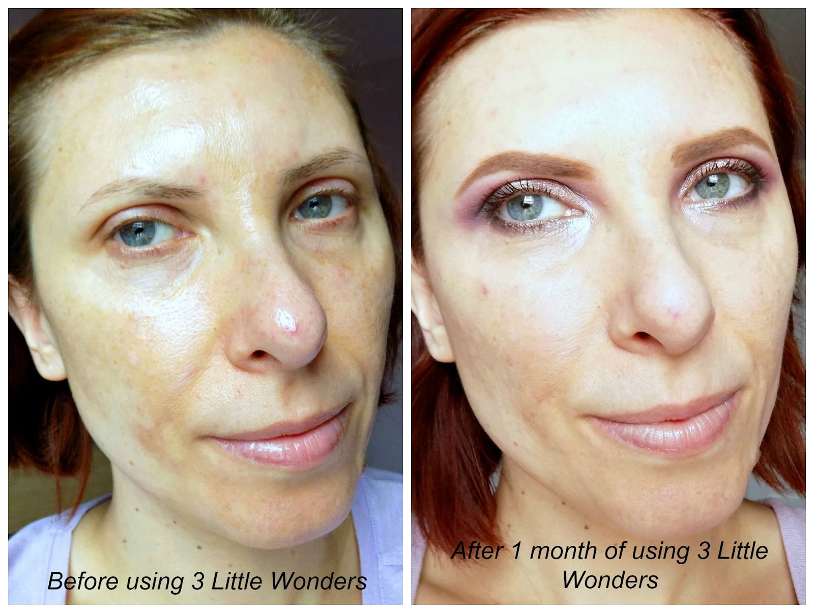 Ole Henriksen 3 Little Wonders before and after photo
