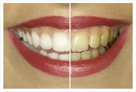 Soyez votre propre dentiste voici quelques astuces pour - Comment enlever le tartre ...