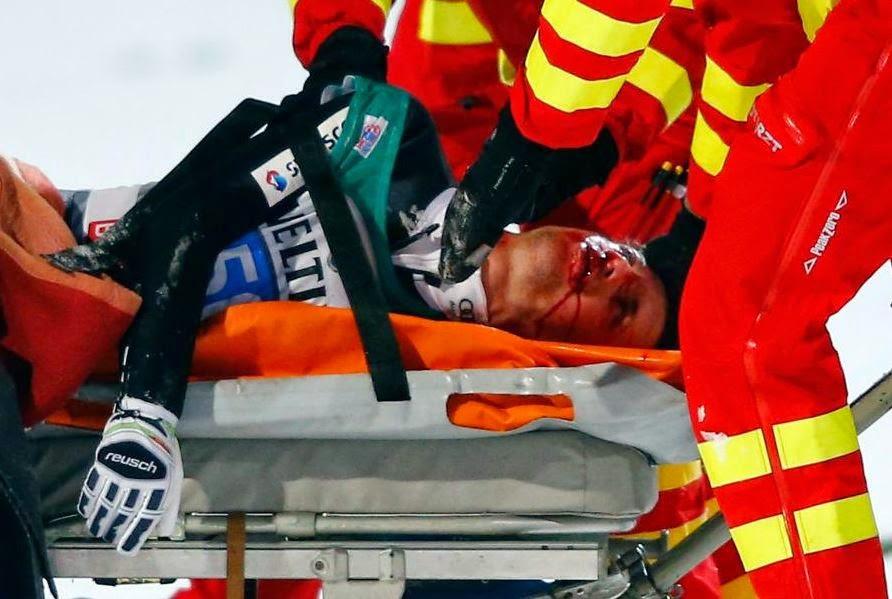 Simon Amman dopo l'incidente. foto: superstarz.com