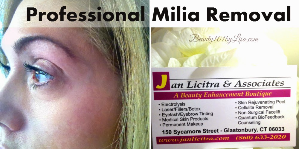 Beauty101bylisa Milia Removal From Eye