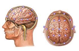 Qué es un electroencefalograma, como funciona y cuando hay que someterse a uno