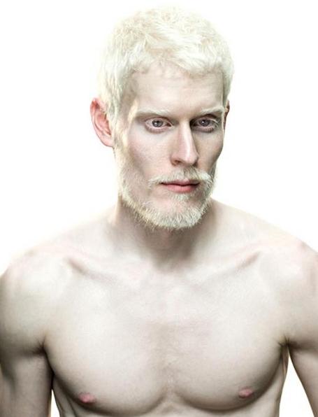 Albino Human Moon based albino humanoids