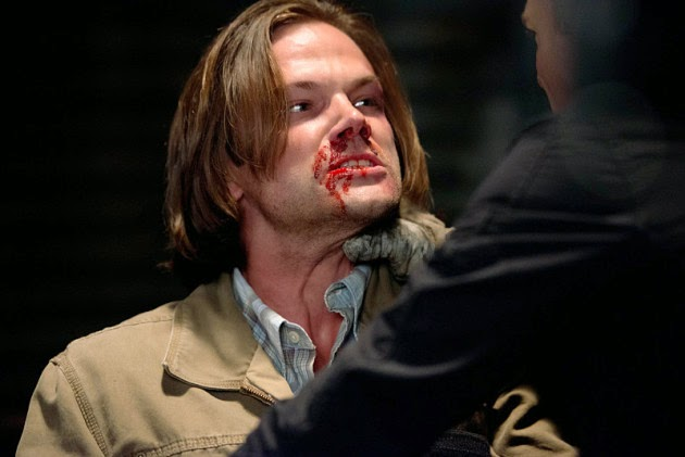 Supernatural S10E02. Sam golpeado