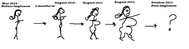implanon weight gain