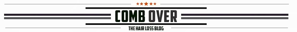 Comb Over | The Hair Loss Blog