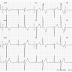 PVC or Aberrant Conduction? (Another Guest Post from Dr. Wang)!