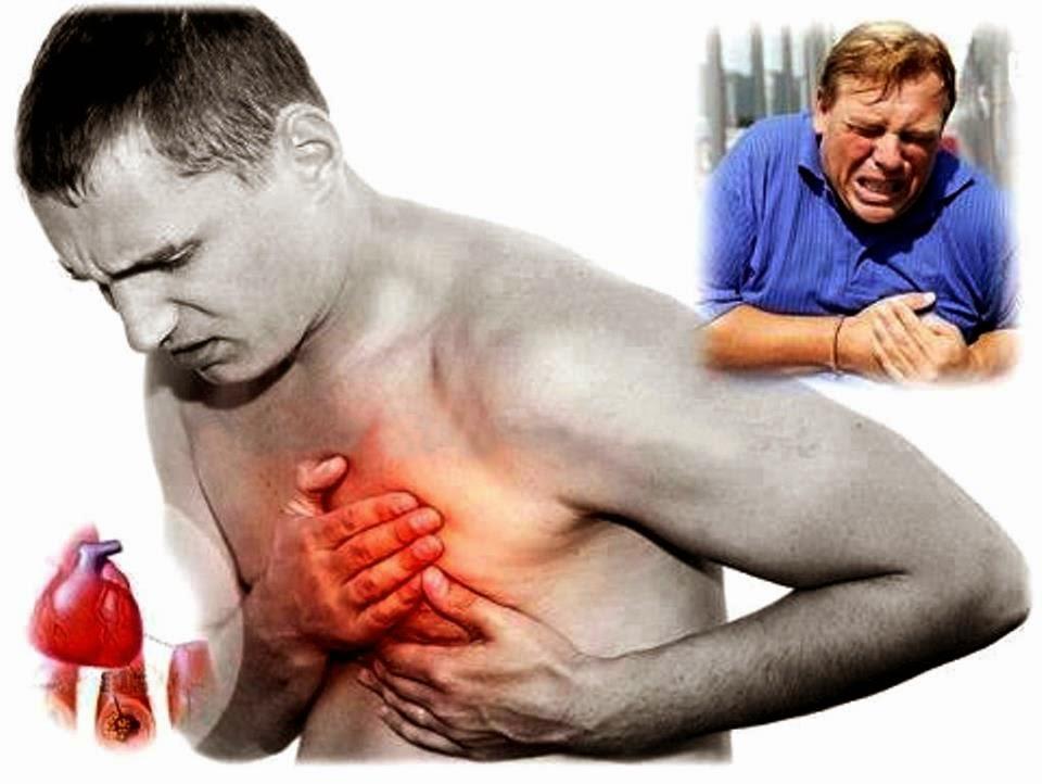 Anticoagulante más reciente supera a la heparina para ciertos ataques cardíacos