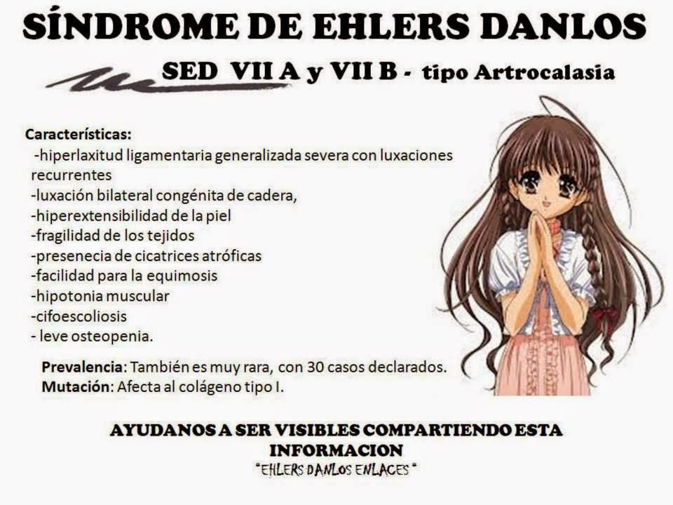 SED VIIA- VIIB Artrocalasia