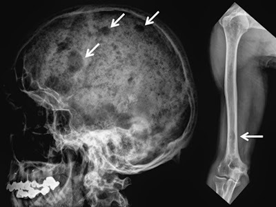 Stable focal osteolytic bone lesions of skull and right humerus in a patient with multiple myeloma in complete remission for 5 y