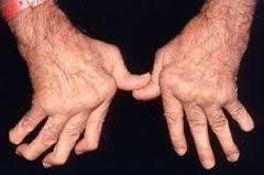 Kebaikan Advanced Joint Health Shaklee - rawat Arthritis