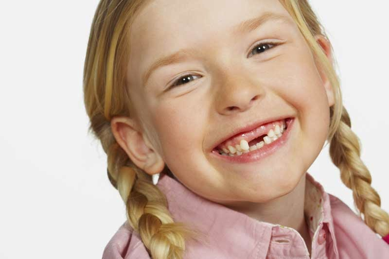 Children Dental Caries
