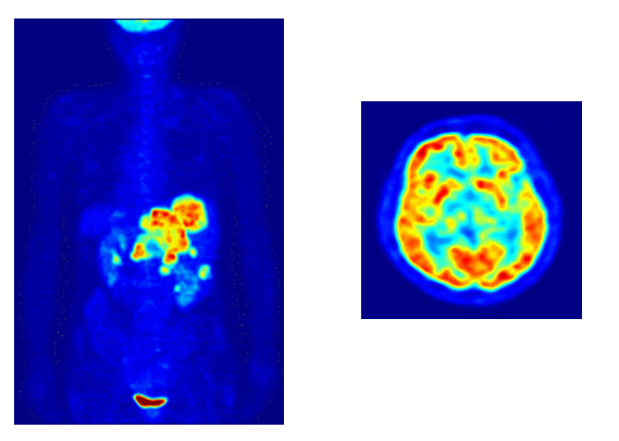 Hasil foto PET-Scan