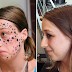 Wanita Ini Ambil Masa 4 Thn Untuk Buang Tato Di Wajahnya
