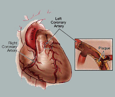 What Is Coronary Heart Disease?