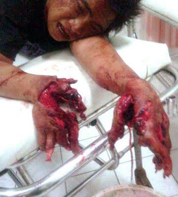 main mercun cederat tangan jari