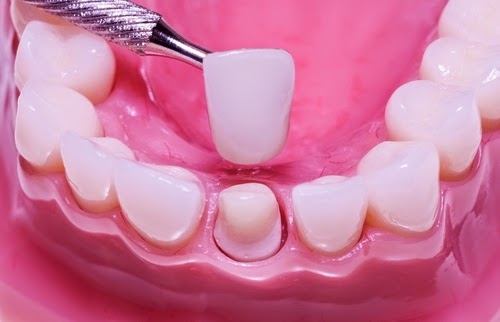 http://www.laserdentalclinicbangalore.com/Dental-Crown-Lengthening.php