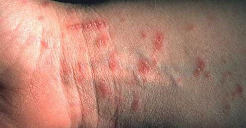 Warum entstehen die Pigmentflecke auf dem Körper