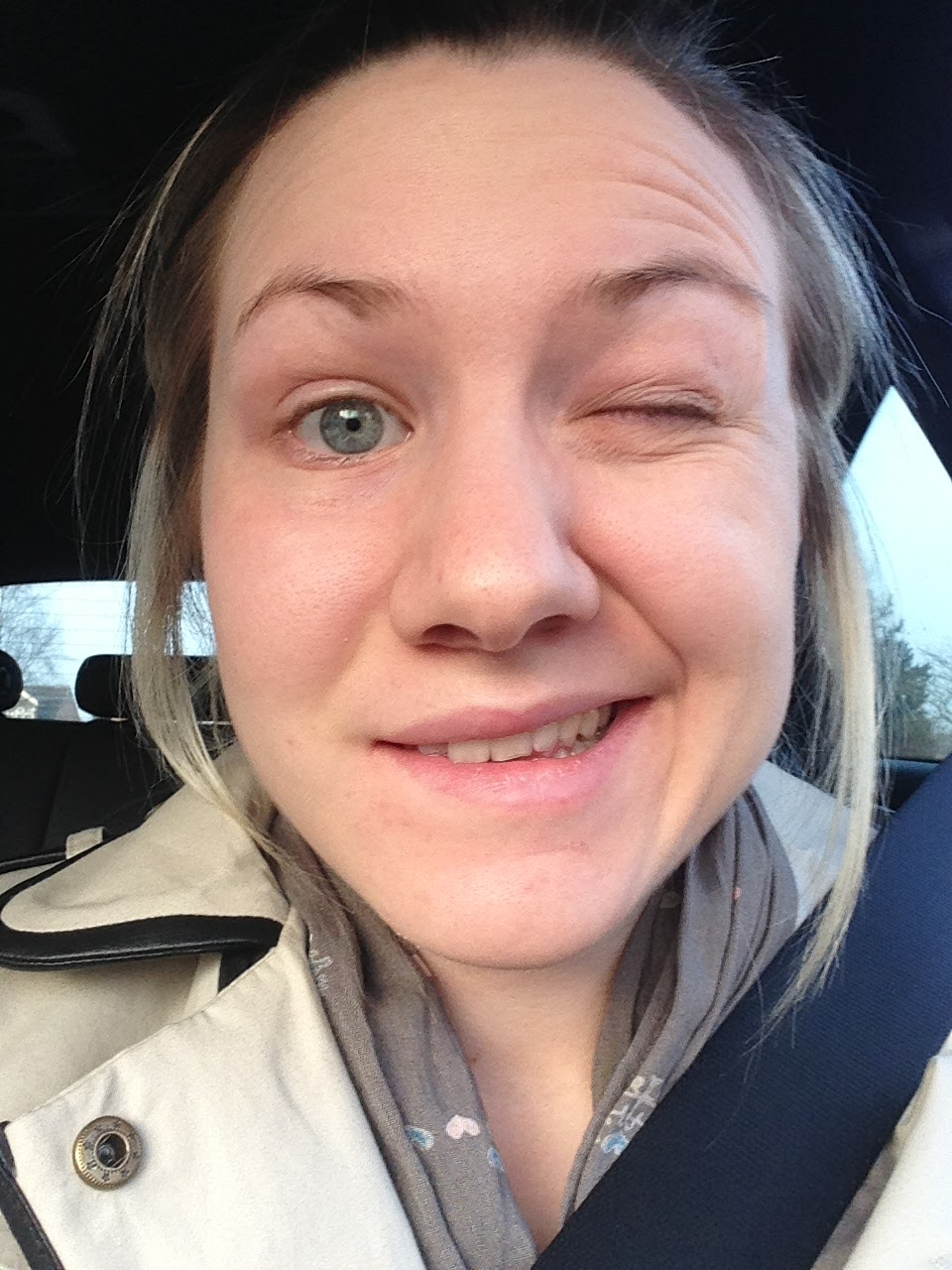 Rhia-lly nice things: The down low on Ramsay Hunt Syndrome (my story)
