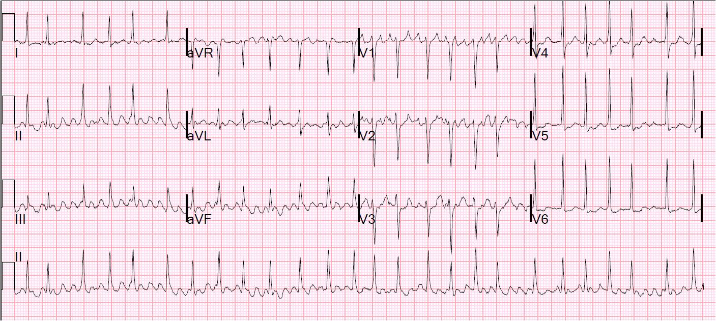 dr smith s ecg blog what is the rhythm answer at the bottom