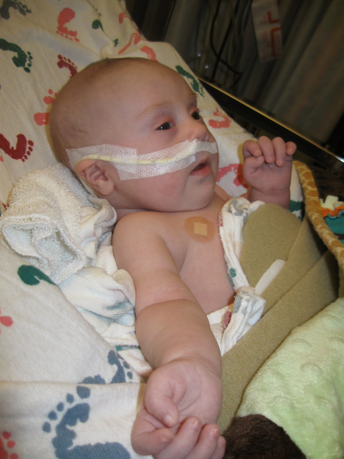 Jacob with his NG tube due to failure to thrive and reflux