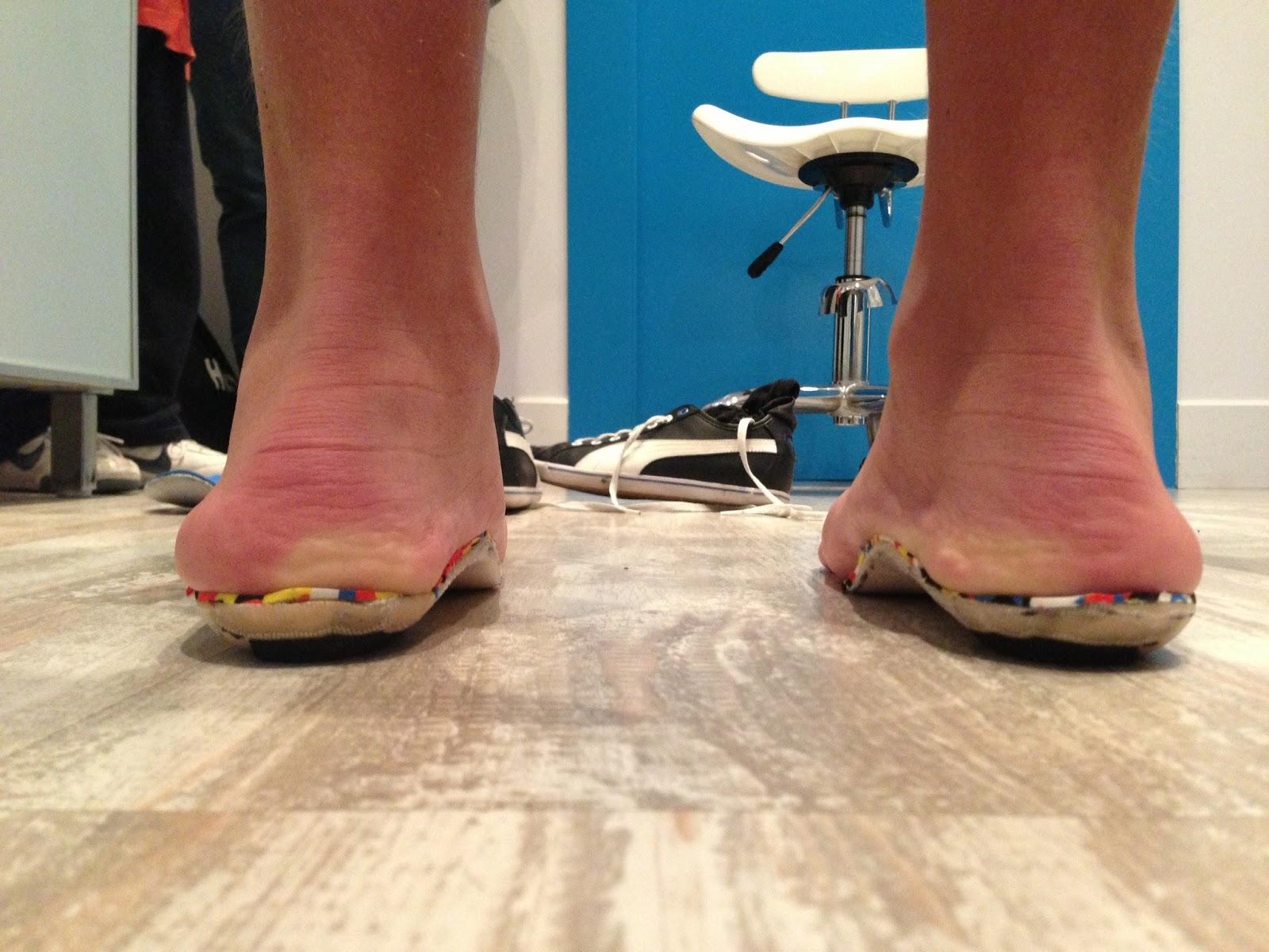 El pie de malaga estafa podol gica pies valgos genu for Operacion de pies