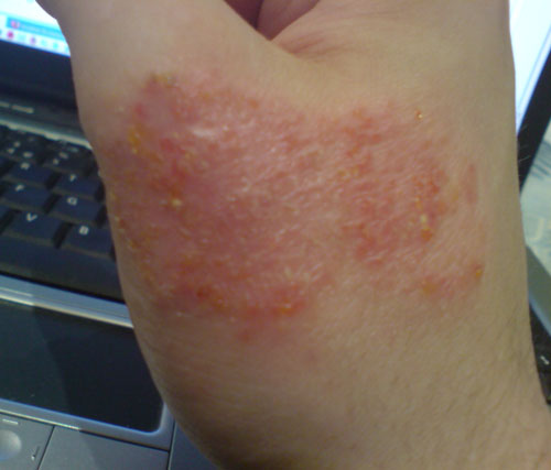 an understanding of eczema Scientists have pinpointed a bunch of processes that go wrong in the skin for  people who have eczema (also known as atopic dermatitis), and it.
