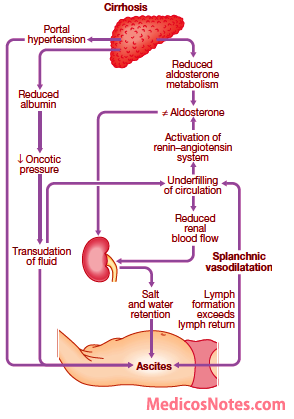 pathophysiology of ascites Ascites needs to be differentiated from other causes of abdominal distension including bowel obstruction, bleeding and huge intra-abdominal masses or cysts.