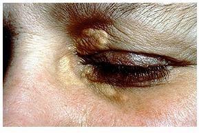 http://obattumorkelopakmataa.blogspot.com/2015/02/obat-tumor-kelopak-mata.html