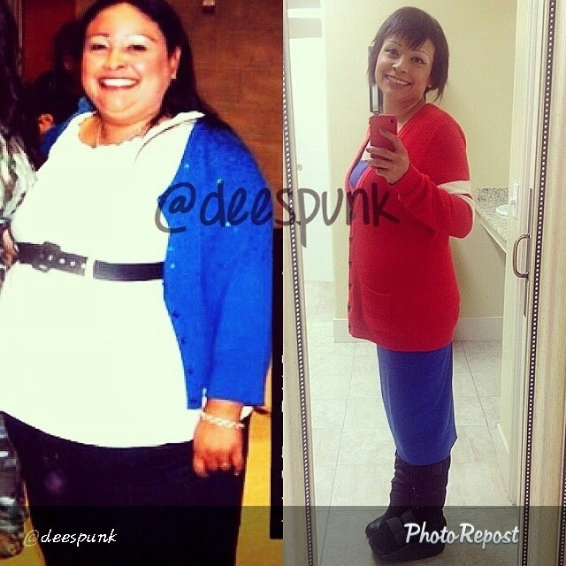 before and after weight loss photos, weight loss success story
