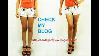bow legs no more review,bow legs no more review