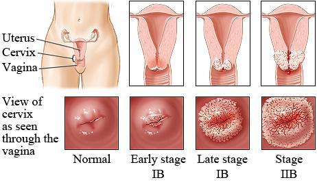 Kanceri i qafës së mitrës,mitra,kanceri i qafes se mitres,mitra dhe kanceri