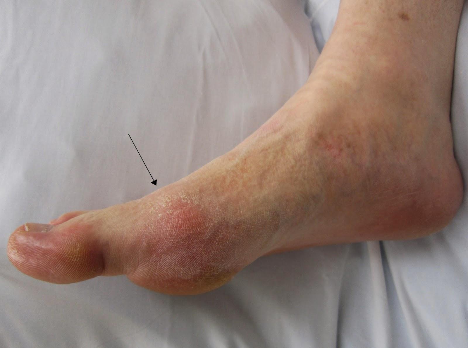 signs of diabetes in men feet