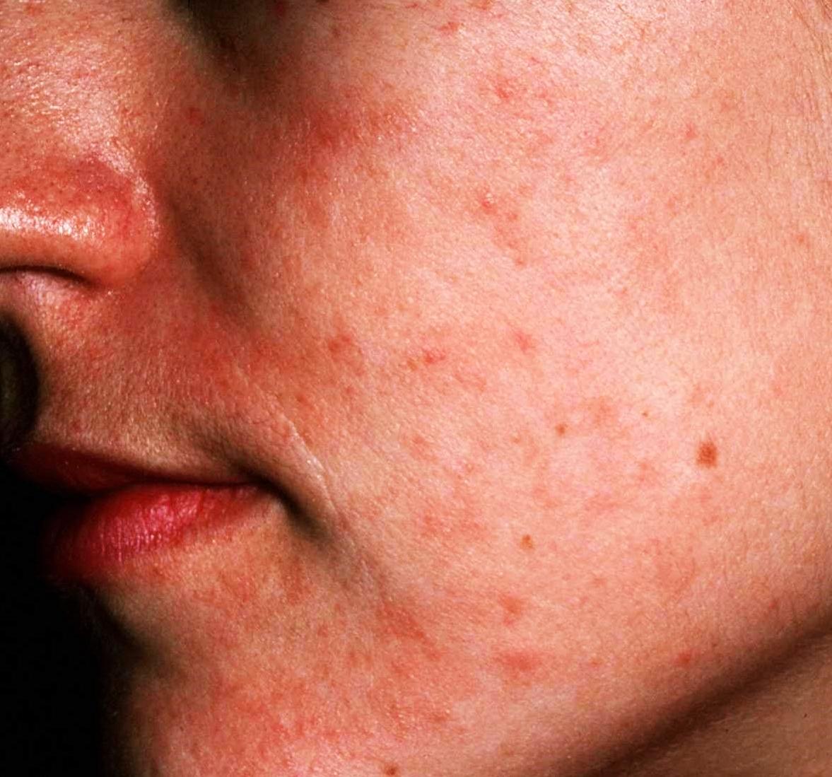 psoriaz-i-ekzema-simptomi