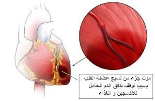 في الأزمة قلبية .. الحذر يصنع فرق !!