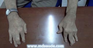 Artrite reumatoide nas mãos